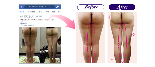 VituleのBefore&After Vitule公式Facebook、Instagramより抜粋